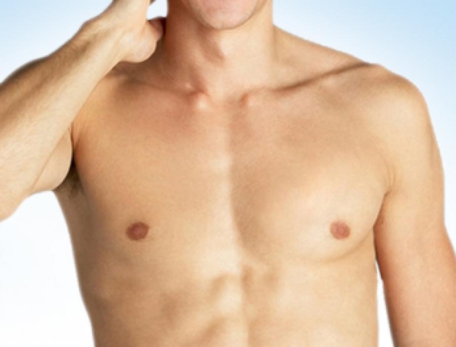 علاج تضخم الثدي عند الرجال